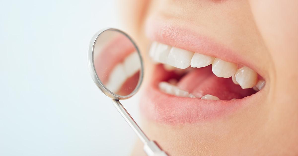 Boca de mujer con un diente roto frente a un espejo dental. Esta imagen se utiliza para ilustrar una entrada sobre qué hacer si se te rompe un trozo de diente.