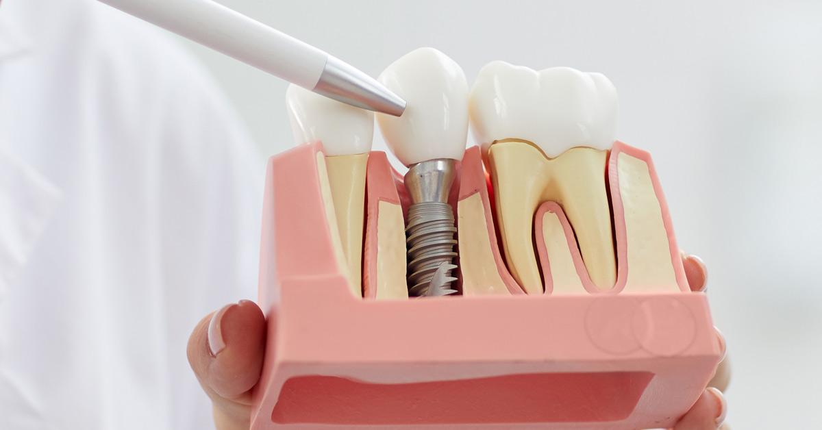 Mano de una persona sosteniendo una muestra que contiene una muela, un diente y un implante, el cual señala esta misma persona en la parte de la corona.