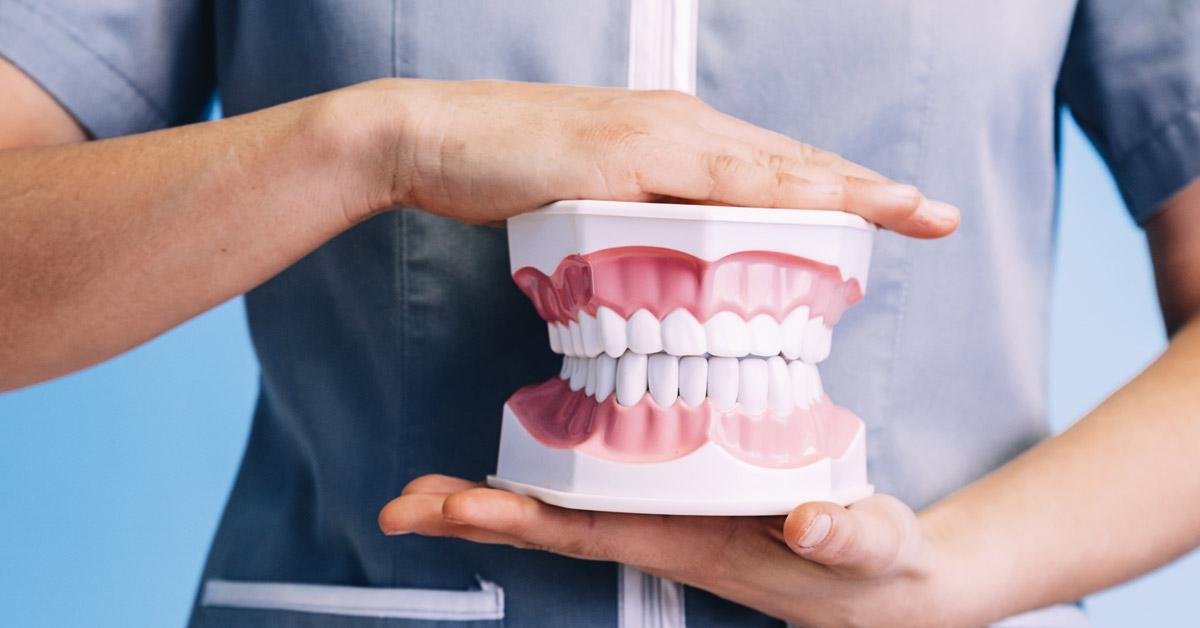Manos de mujer dentista sosteniendo unos moldes dentales. Esta imagen se utiliza para ilustrar una entrada sobre qué tipos de mordida hay.